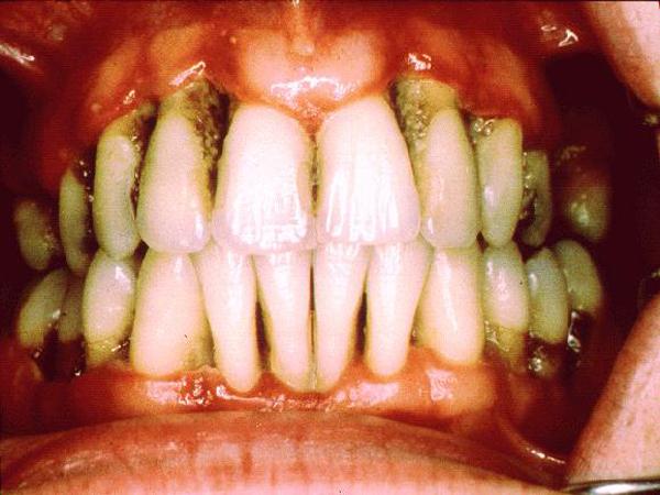 Th 026 011 016 Gum Disease
